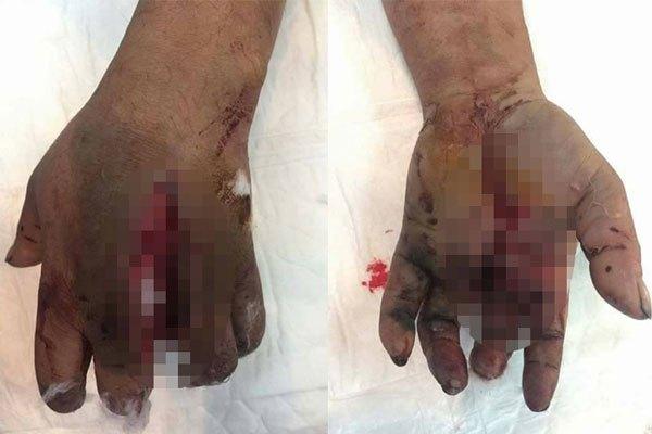 Đôi bàn tay bị tổn thương nặng vì pin sạc dự phòng không rõ nguồn gốc
