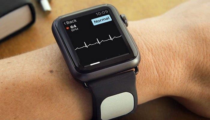 Đồng hồ thông minh Apple Watch có khả năng phát hiện đột quỵ